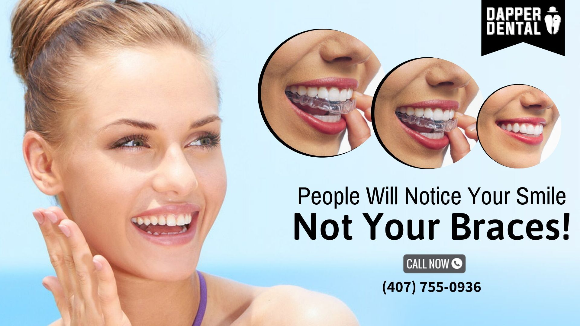 Straighten Your Teeth Without Metal Brackets Invisalign