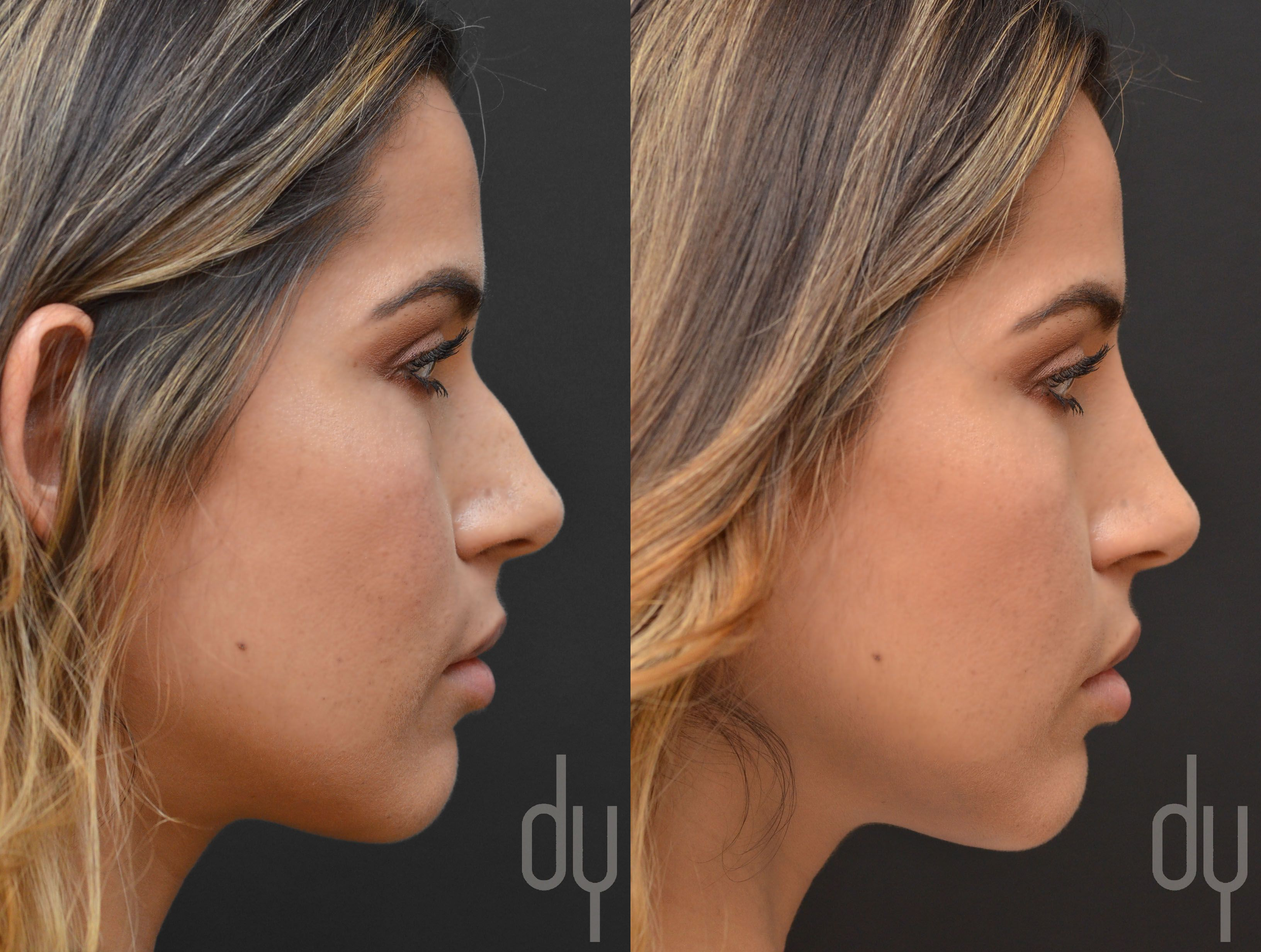 Best Hairstyle For Large Nose 25 Best Ideas About Nose Jobs On Pinterest Rhinoplasty Nose