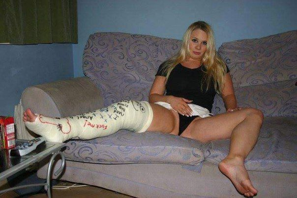 Being in a cast fetish photos 413