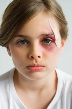 how to treat a black eye on a toddler