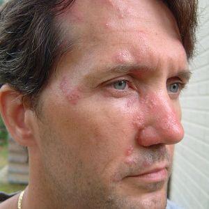 Shingles Rash Pictures, Symptoms, Vaccine Facts