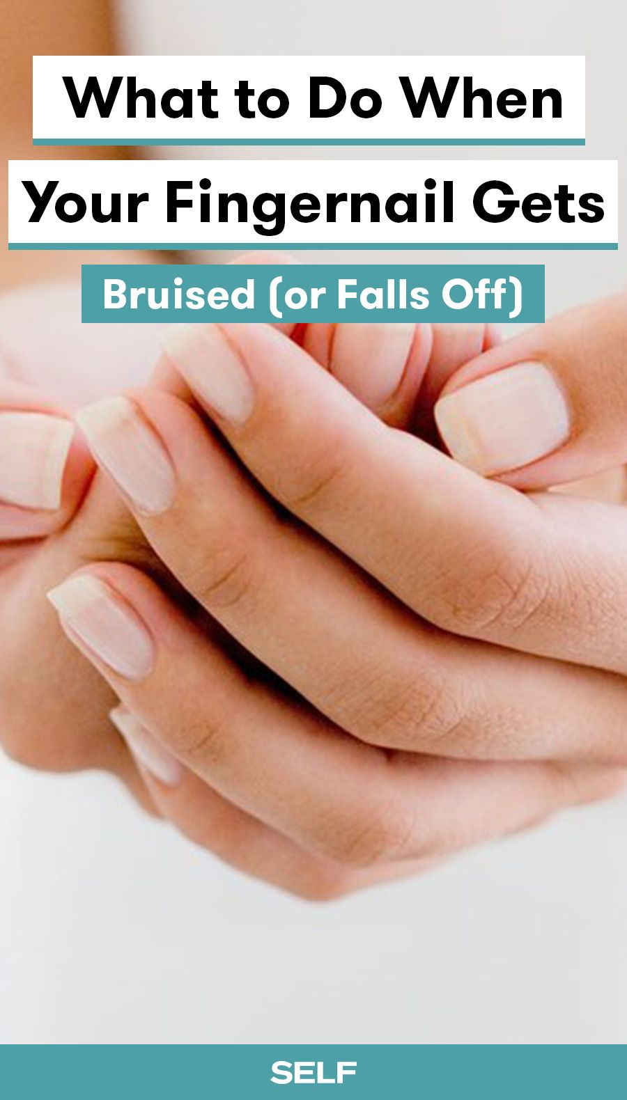 What to Do When Your Fingernail Gets Bruised (or Falls Off) | Pinterest