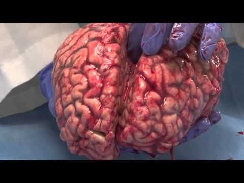 The Human Brain (Unfixed)...an amazingly thorough analysis by the ...