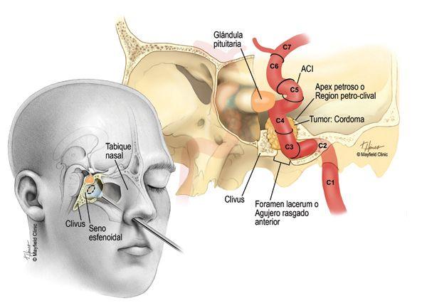 organe mari de varicoase)