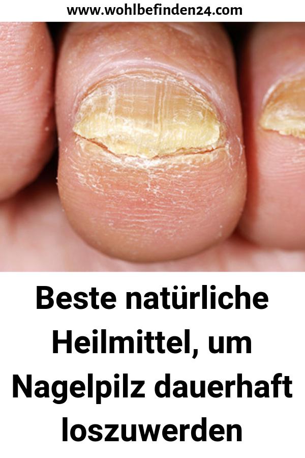 Beste natürliche Heilmittel, um Nagelpilz dauerhaft loszuwerden #Gesundleben #Basenfastenrezepte #natürlichtipps #Nagelpilz #naturalcures