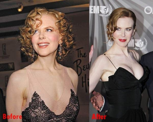 Nicole Kidman Breast Implants Plastic Surgery Before And