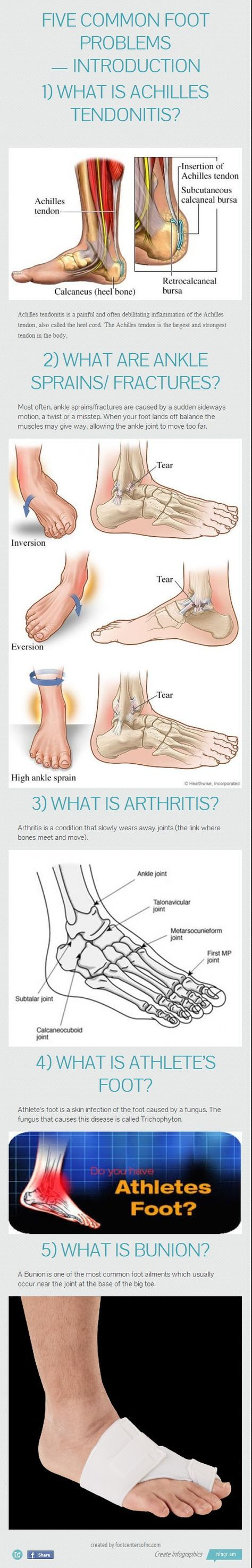 5 Common Foot Problems Infographics —