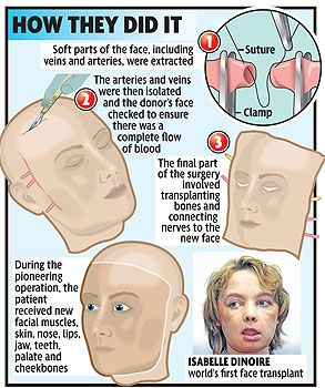 Facial first transplant world there similar