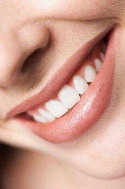 teeth contouring - Google Search