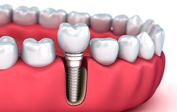 How Long Does It Take To Get A Dental Implant? in 2020 ...