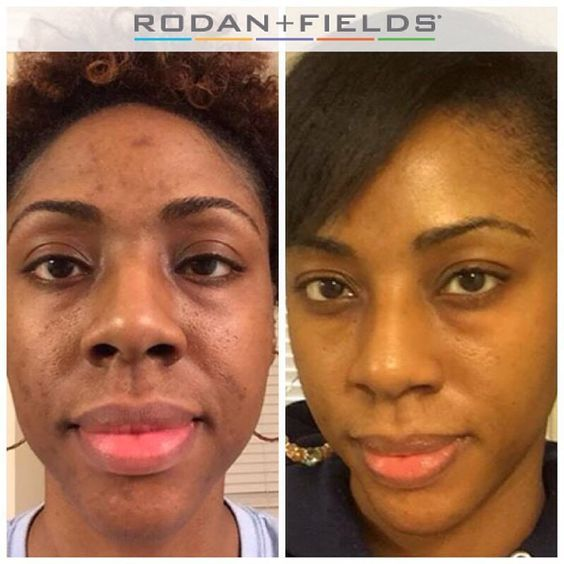 """Many of us have used skincare products that temporarily """"fix"""" skin on the surface. The results are short-lived & your money is wasted.How about trying a product that transforms your skin from the inside out — prescription-based premium skincare from RODAN FIELDS. Thelma used Unblemish and the Macro E the first 2 1/2 months. Now Unblemish and Reverse with Amp MD. AND she became a consultant... So in addition to getting great skin, she's getting paid to do it…"""