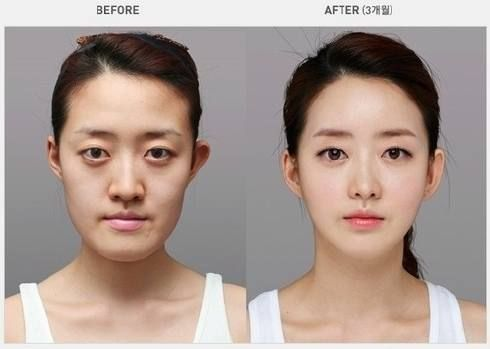 Korean Plastic Surgery Before After Always interesting what you ...