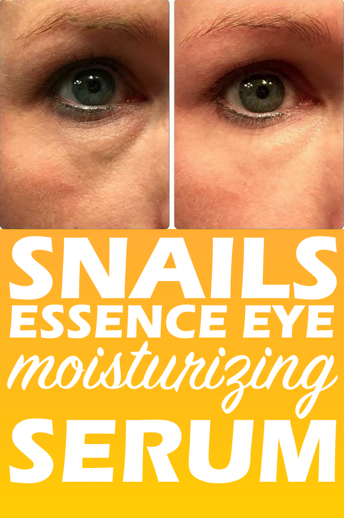 Snails Essence Eye Moisturizing Serum | beauty | Clear skin