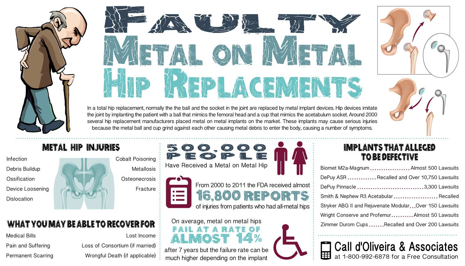 Faulty Metal On Metal Hip Replacements Infographic With A