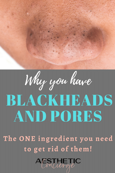 How To Get Rid Of Blackheads Large Pores It S Not A Pore Strip Or Harsh Scrub Aesthetic In 2020 Get Rid Of Pores Get Rid Of Blackheads Drugstore Skincare Routine