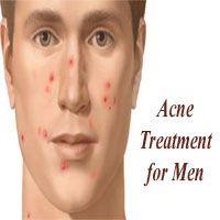 Advise Adult acne home treatment