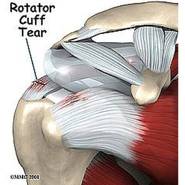 Rotator Cuff | 3d Anatomy | Pinterest | Rotator cuff, Weight trainer ...