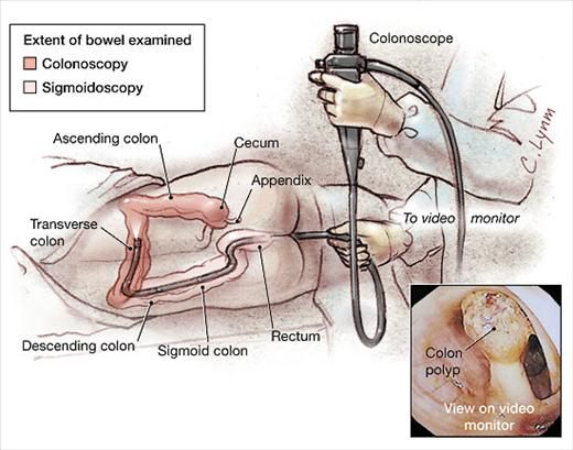 Colonoscopy Depiction Of Equipment Used And Position Of