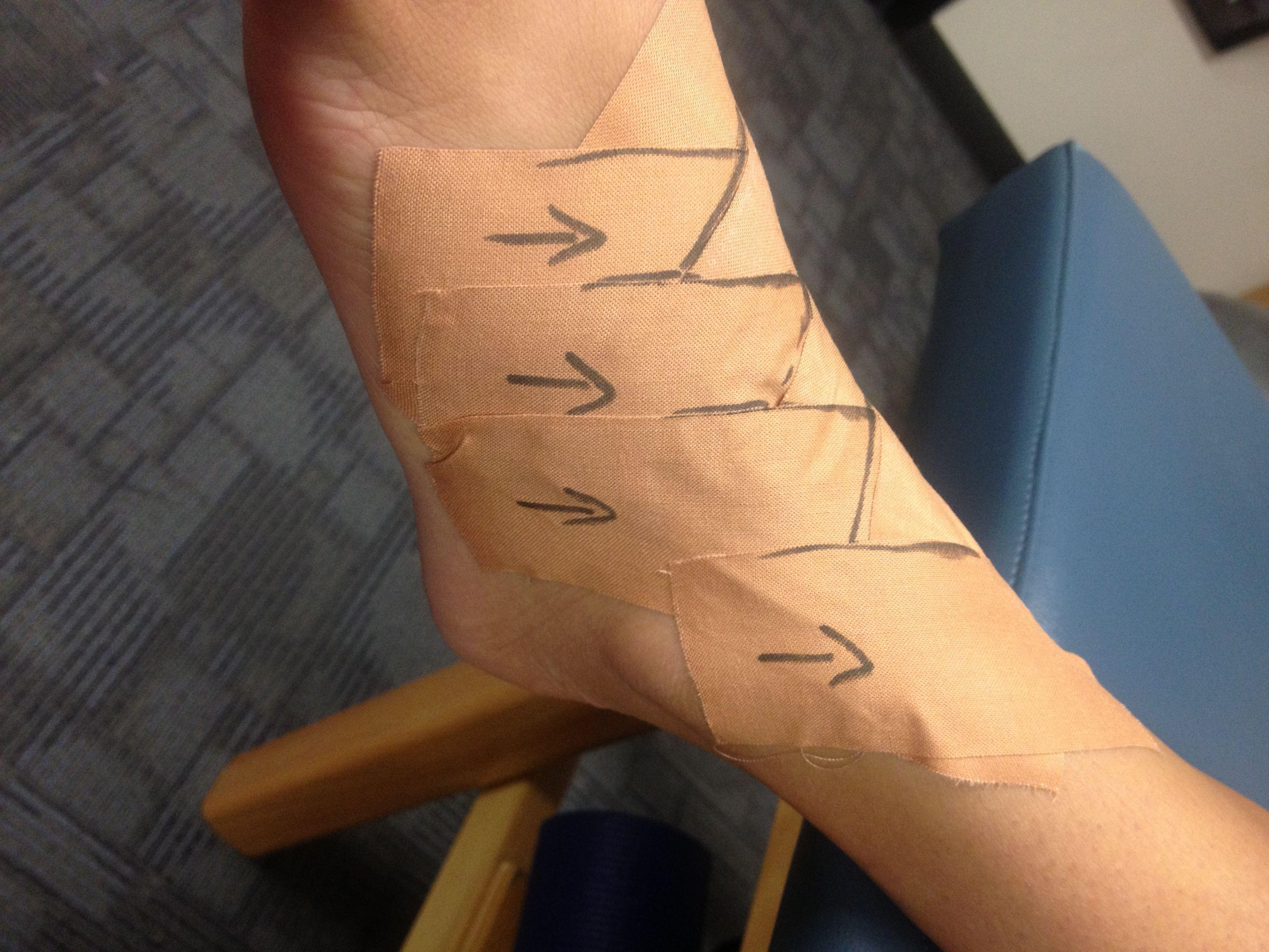 Herringbone tape pattern for midfoot sprain or Lisfanc injury ...