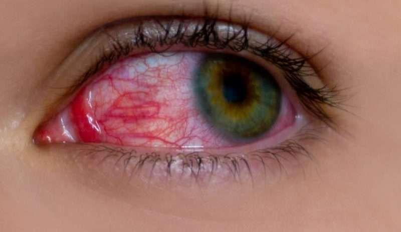 حساسية العين أنواعها وكيفية علاجها Uveitis Conjunctivitis Eye Health