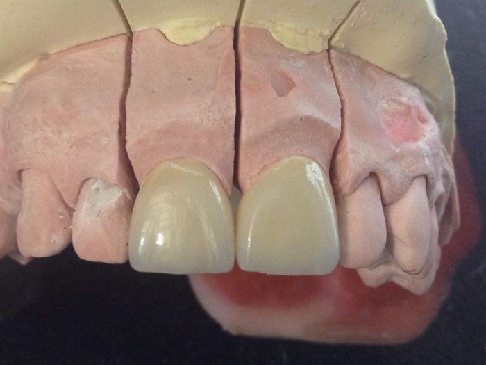 GALERIA | ALC Laboratorio Dental