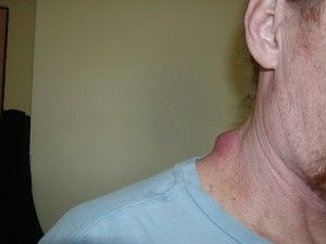 Young Living Oils Help Body Remove 30 year old Lump in Neck