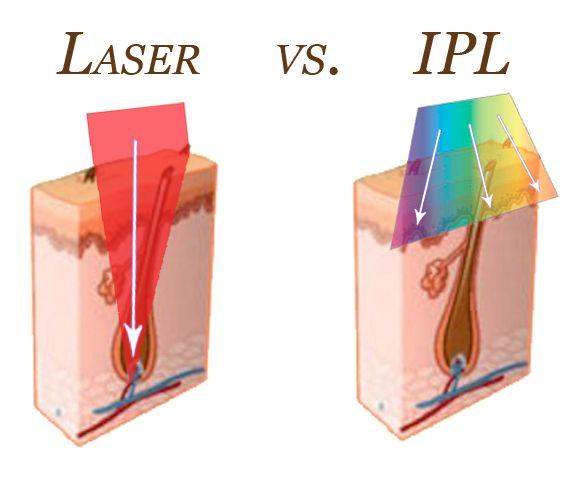e29eba68e1 Laser vs. IPL Hair Removal  Elite Plastic and Cosmetic Surgery ...