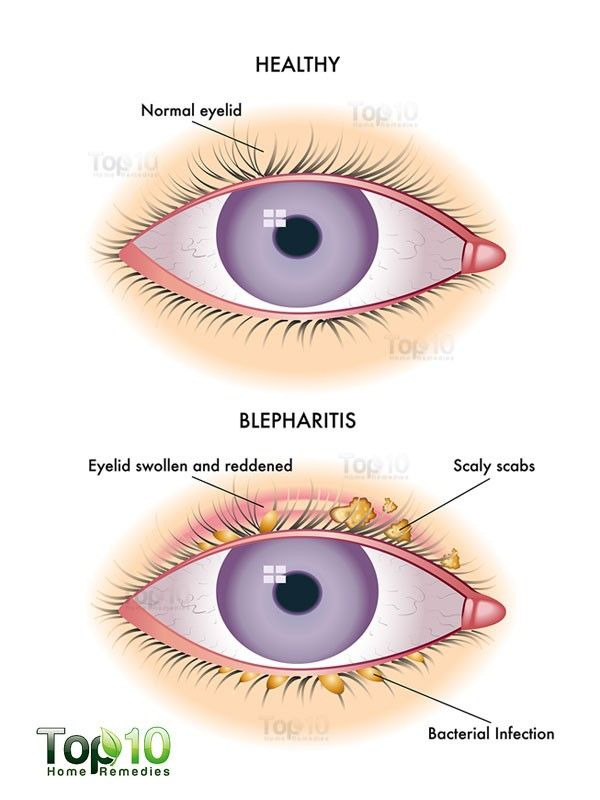 Home remedies for blepharitis eyelid inflammation remedies home remedies for blepharitis eyelid inflammation ccuart Gallery