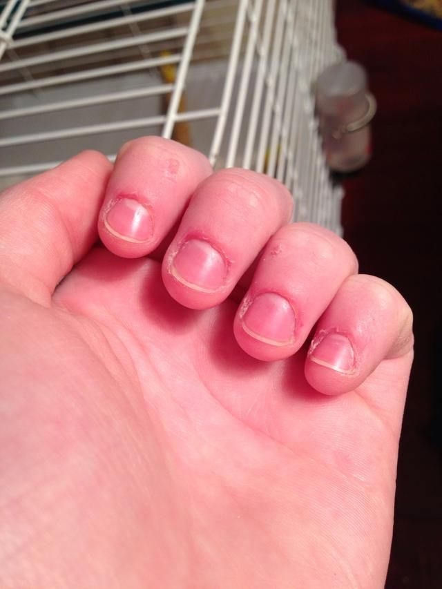 How to Fix and Grow Out Bitten Nails   Recipe   Nails   Pinterest