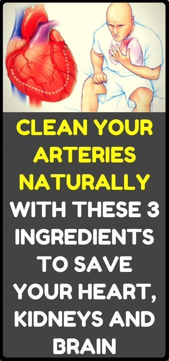 How to clean out plaque in arteries – 3 ingredients mixture#health #fitness #beauty #women #weightlo...