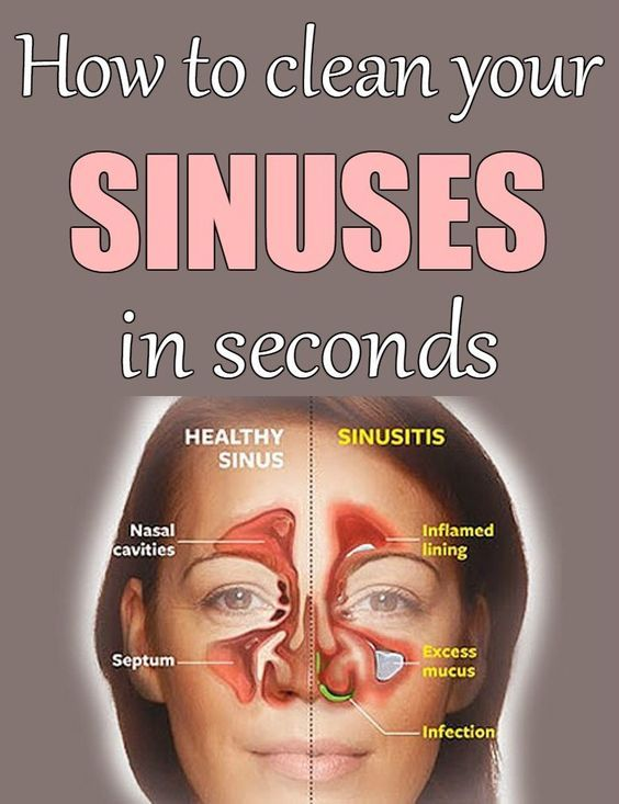 how to naturally relieve sinus pressure