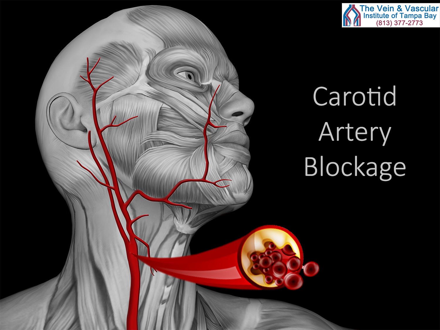 Carotid Artery Surgery in Tampa, FL To Help Prevent Stroke ...
