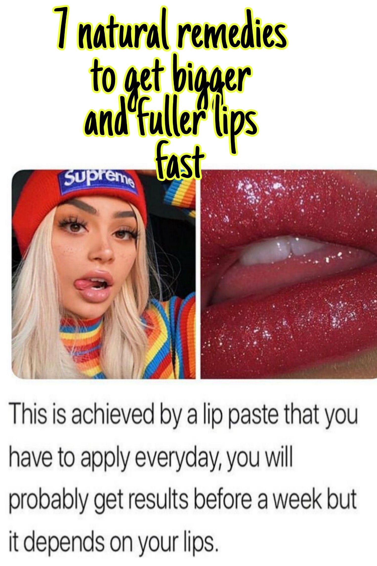 7 natural remedies to get fuller and bigger lips (With