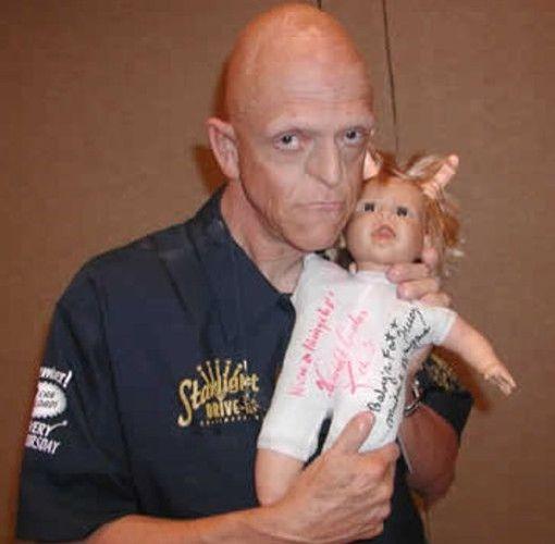 No, esto no es maquillaje, este actor nació en los Ángeles y sufre de Hipohidrótica Displasia ectodérmica (una rara enfermedad que lo dejo sin glandular de sudor, cabellos, uñas o dientes). También ha aparecido en la ciencia ficción y numerosas películas de fantasía tales como Mi proyecto de la ciencia (1985),  la Respuesta Armada (1986) y Malos Espíritus (1990). El también apareció en los Artículos defectuosos del Diablo. Berryman general retrata ciclistas mutantes.