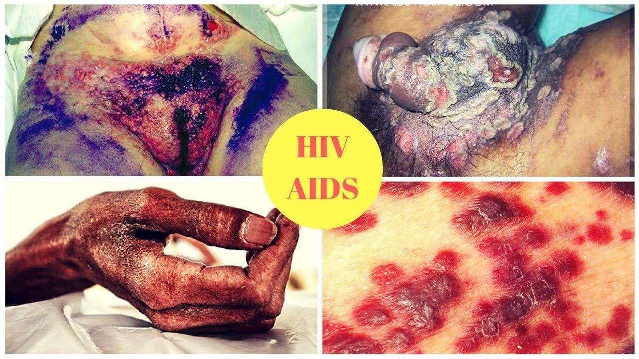 Does masturbating cause aids