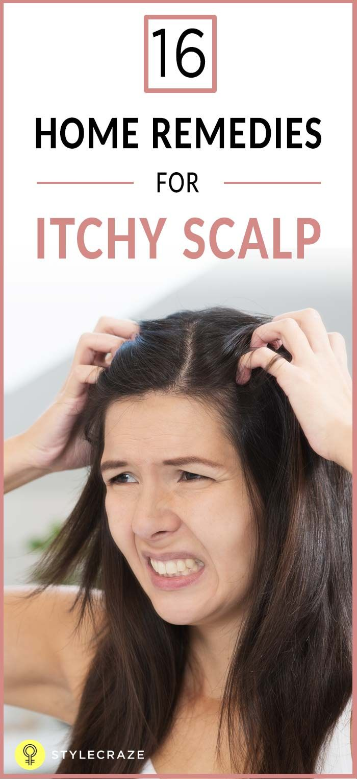 16 Home Remedies For Itchy Scalp Oils Pinterest Itchy Scalp