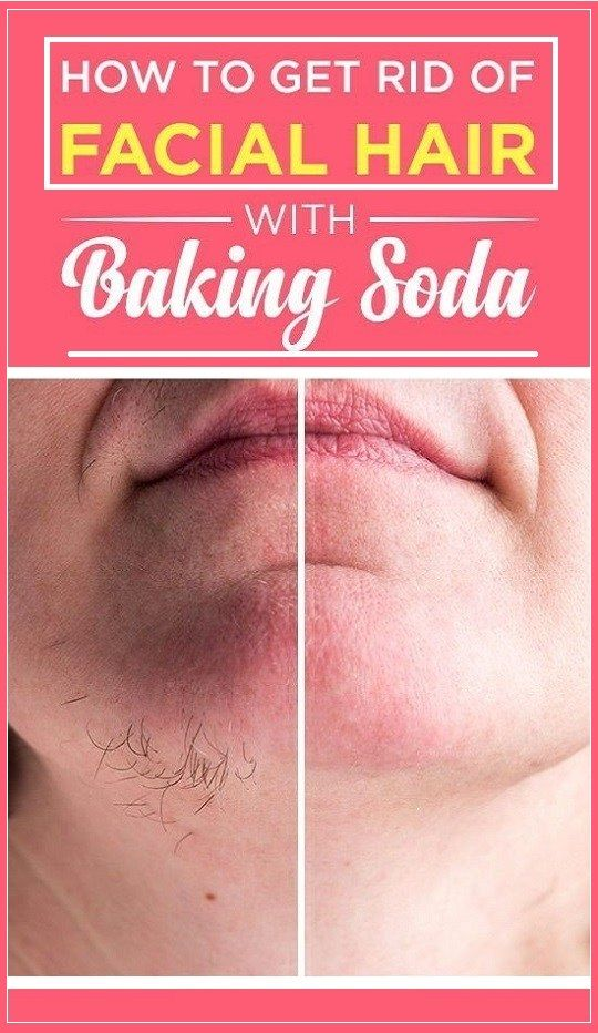 How to Get Rid of Facial Hair With Baking Soda
