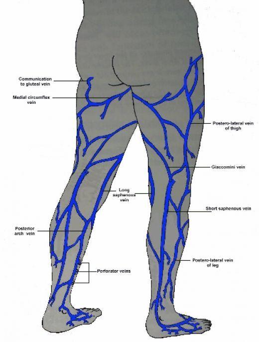 Vulvar Varicose Veins | Vulvar Varicose Veins Relief ...