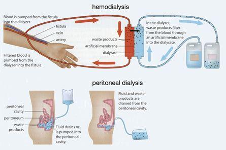 Hemodialysis And Peritoneal Dialysis Hemodialysis Patient Care