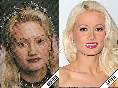 Celebs Who May Or May Not Have Had Nose Jobs Celebrity Surgery Nose Job Face Makeover