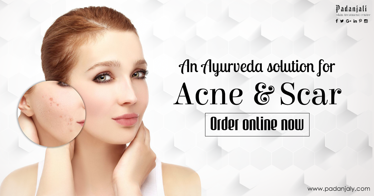 Ayurveda Solution for Acne and Scar ayurveda treatment