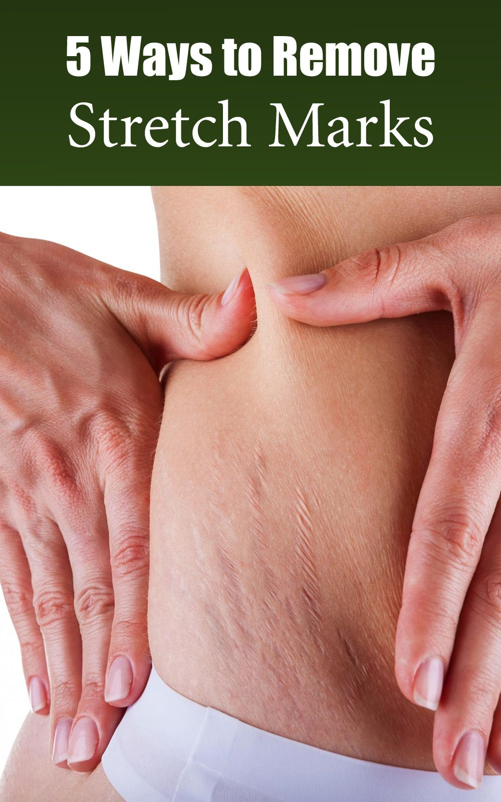5 Ways to Remove Stretch Marks Naturally Stretch mark