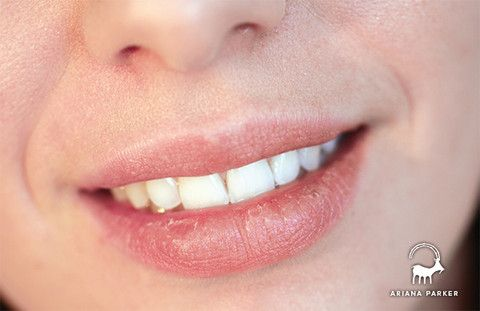Best Remedy For Dry Lips – Ariana Parker