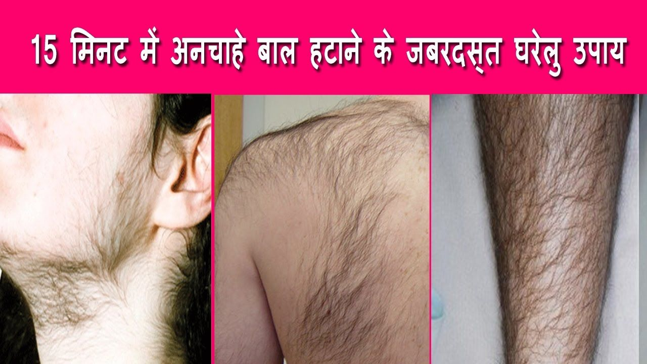 How to remove unwanted hair from face-1537