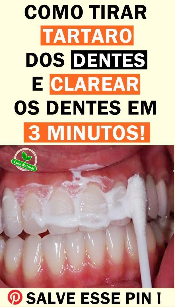 7 Maneiras De Eliminar A Placa Bacteriana Clarear Dentes