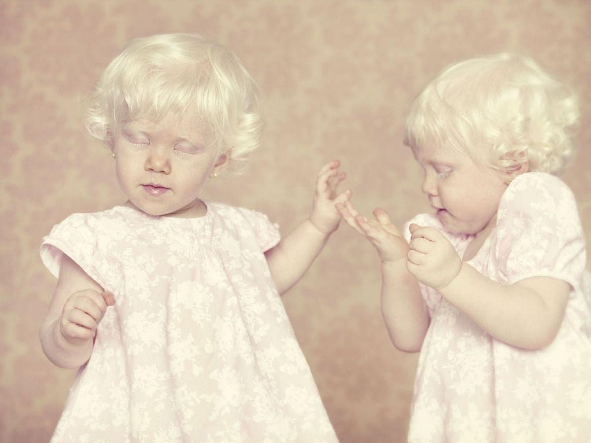 Albino Woman Gives Upskirt Views