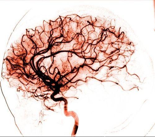 Cerebral angiogram | Scientifically Beautiful | Pinterest | Brain ...