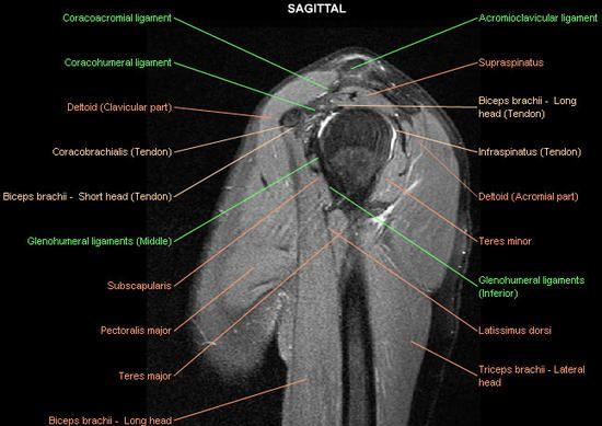 Mri Anatomy Shoulder Google Search Anatomy Imaging Pinterest