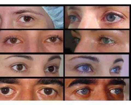 eye color surgery before and after - Eye Color Change Surgery Before And After