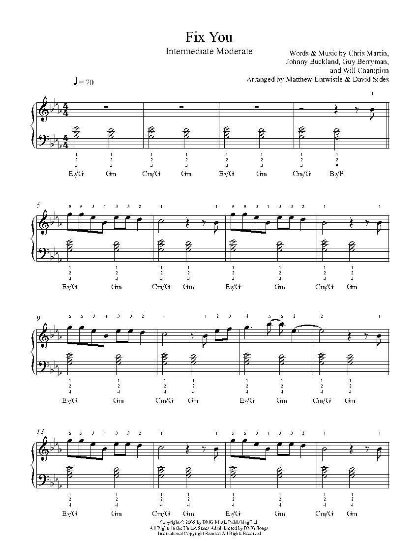 Fix You By Coldplay Piano Sheet Music Intermediate Level Piano Sheet Piano Sheet Music Coldplay Piano